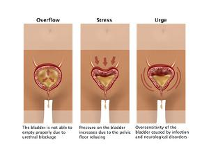 Types of Incontinence by Gwen Shockey