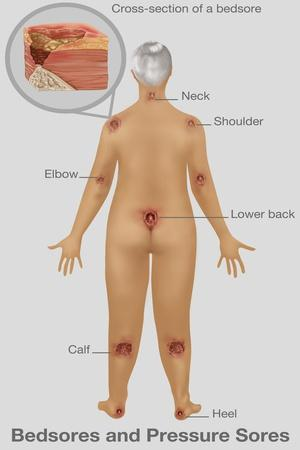 Woman with Pressure Sores, Illustration