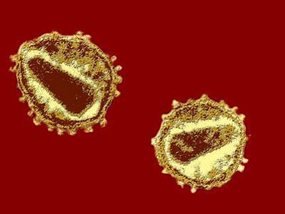 Hiv Viruses
