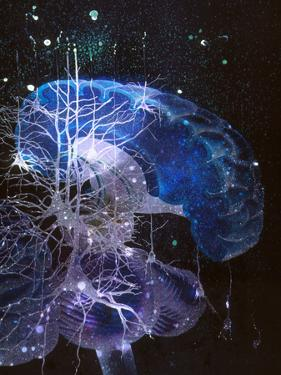 Conceptual Art of Brain & Nerve Cells In Dementia by Hans-ulrich Osterwalder