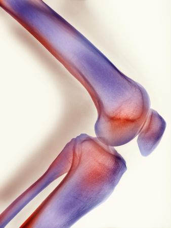 https://imgc.allpostersimages.com/img/posters/healthy-knee-x-ray_u-L-PZJODN0.jpg?artPerspective=n