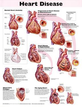 Heart Disease Anatomical Chart 2nd Edition Poster Print