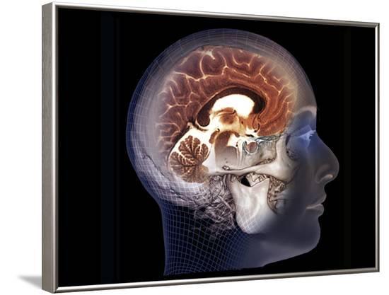Human Brain, MRI Scan--Framed Photographic Print
