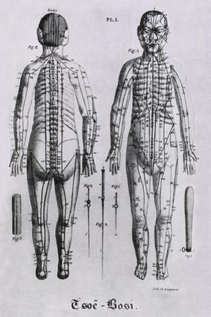 Human Figure with Acupuncture Points and Meridians Identified, 1825