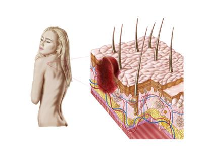 Illustration of an Atypical Growth on the Skin That Could Be a Sign of Skin Cancer
