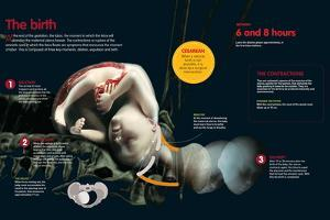 Infographic About the Birth of a Baby, Uterus Contraction and Dilation of the Neck of the Womb