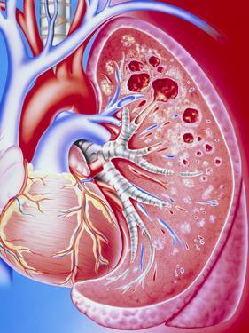 Art of Pulmonary Tuberculosis with Lung Cavities by John Bavosi