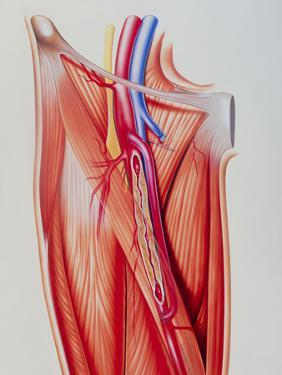 Arterial Bypass by John Bavosi