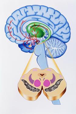 Artwork of Brain Areas In Parkinson's Disease. by John Bavosi
