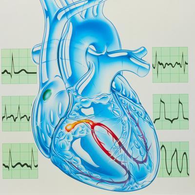 Artwork of Cardiac Arrhythmia with Heart & ECGs