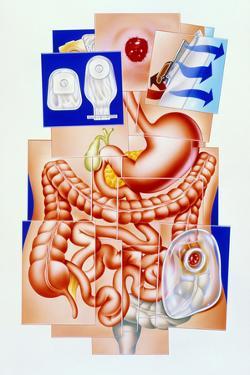Artwork of Human Intestines And Colostomy by John Bavosi