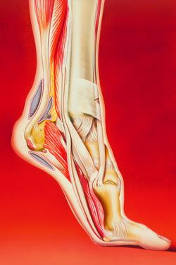 Artwork Showing Calcaneal Spur And Foot Pain by John Bavosi