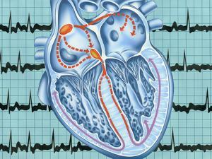 Atrial Fibrillation by John Bavosi