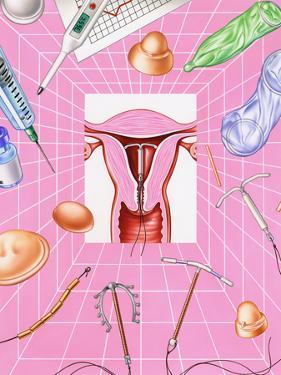 Contraception by John Bavosi