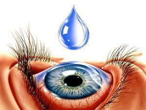 Eye with Conjunctivitis by John Bavosi