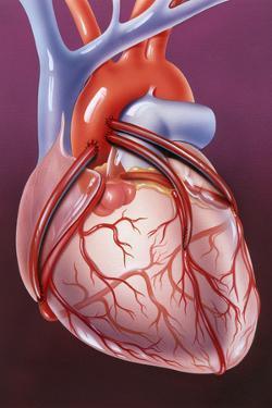 Heart Bypass Grafts by John Bavosi