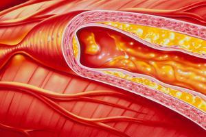 Illustration of Coronary Artery Atherosclerosis by John Bavosi