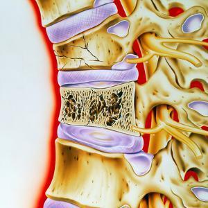 Osteoporitic Spine by John Bavosi