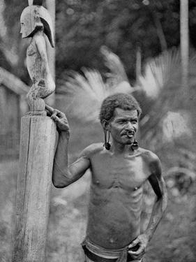 Malformation of the Ears, Solomon Islands, 1920 by JW Beattie