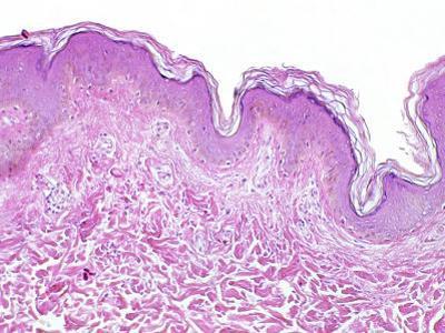 Human Skin Section