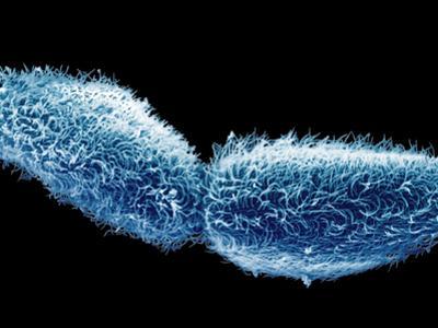 A Paramecium Ciliate Protozoa Undergoing Fission