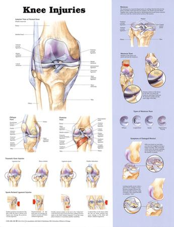 Knee Injuries Anatomical Chart Poster Print