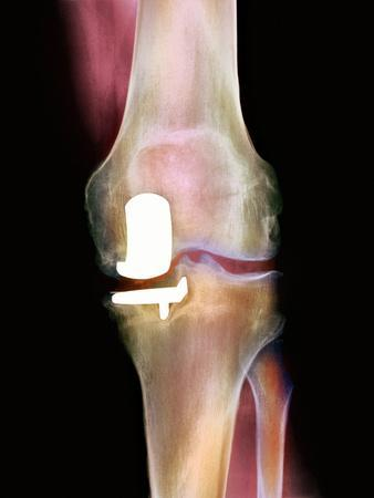 https://imgc.allpostersimages.com/img/posters/knee-joint-prosthesis-x-ray_u-L-PZJR070.jpg?artPerspective=n