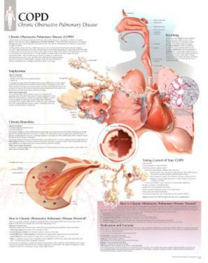 Laminated COPD Educational Disease Chart Poster