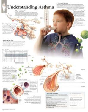Laminated Understanding Asthma Educational Chart Poster