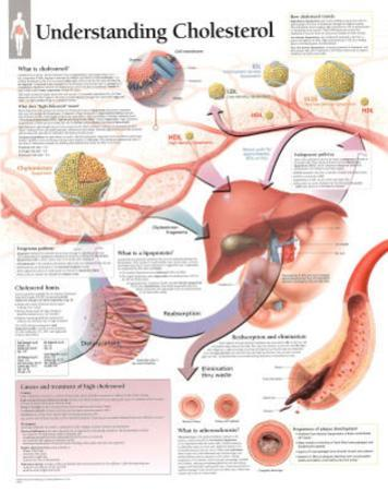 Laminated Understanding Cholesterol Educational Chart Poster
