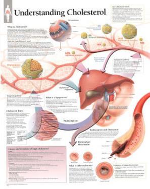 Laminated Understanding Cholesterol Educational Chart Poster