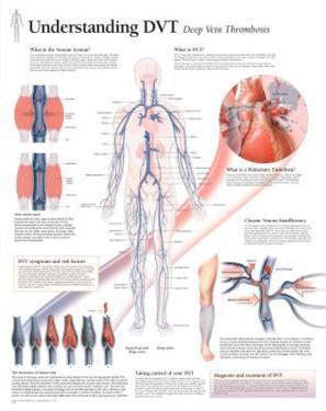 Laminated Understanding DVT Educational Disease Chart Poster
