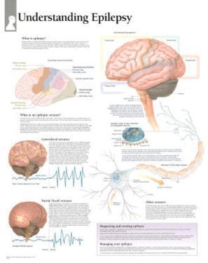 Laminated Understanding Epilepsy Educational Chart Poster