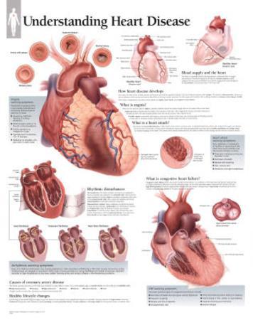 Laminated Understanding Heart Disease Educational Chart Poster