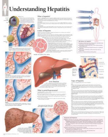 Laminated Understanding Hepatitis Educational Chart Poster