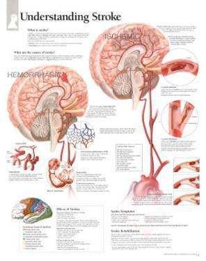 Laminated Understanding Stroke Educational Chart Poster
