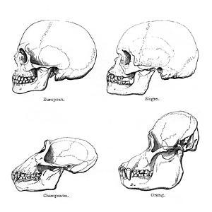Lateral View of the Skull or Profile, 1848