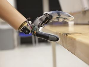 A Patient Performs Functional Tests with the Proto 1 Arm by Mark Thiessen