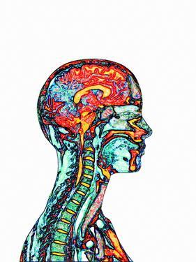 Brain And Spinal Cord, MRI by Mehau Kulyk