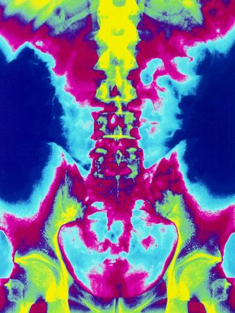 Coloured X-ray of Normal Lumbar Spine (lower Back)