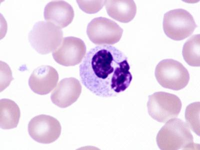 Leukocyte in a Blood Smear from a Human Male Without a Drumstick. Brightfield by Michael Abbey