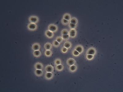 Living Eucapsis Cyanobacteria. Phase Contrast by Michael Abbey