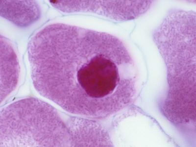 Nitrogen-Fixing Bacteria (Rhizobium Leguminosarum) in Legume Root Cells by Michael Abbey