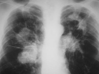 X-Ray of Tuberculosis Calcification Caused by Mycobacterium Tuberculosis Bacteria by Michael Abbey