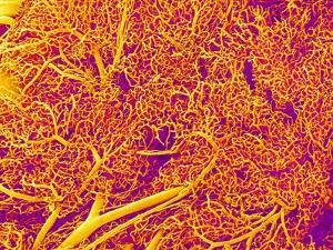 Blood Vessel Cast from Rat Pancreas by Micro Discovery