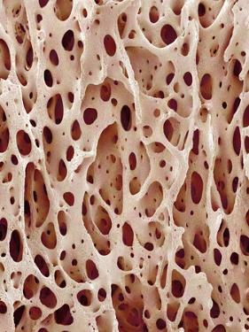 Bone Tissue by Micro Discovery