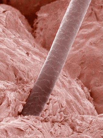 Human Hair and Skin