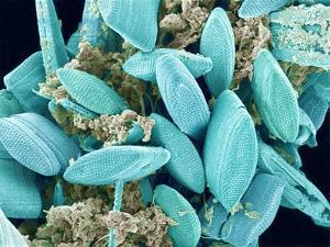 Marine Diatom by Micro Discovery