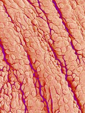 Surface of a valve of a rat heart by Micro Discovery