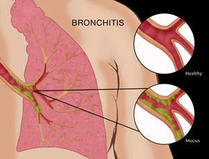 Bronchitis by Monica Schroeder